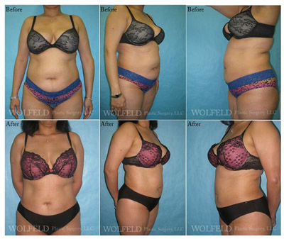 Before and After Liposuction Westchester NY