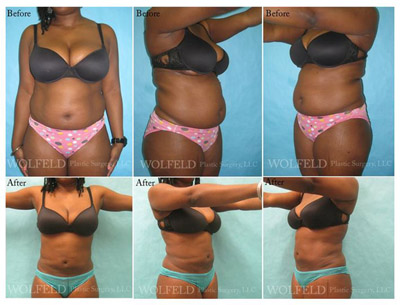Cosmetic Surgeon Westchester NY Liposuction